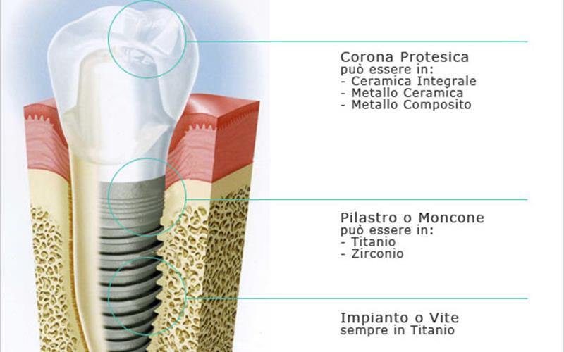 Risultati immagini per Le parti di un impianto dentale
